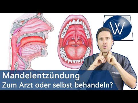Mandelentzündung & Halsschmerzen: Schnell loswerden & Was Sie wissen müssen wenn Sie betroffen sind!