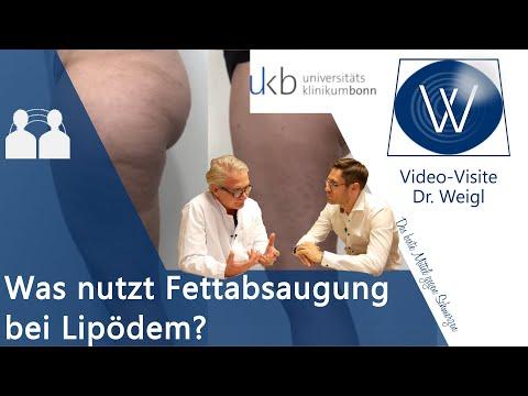 Lipödem & dicke Beine durch Fettabsaugung für immer weg: Tipps & OP-Erfahrungen mit Dr. Walgenbach