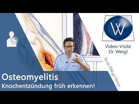 Osteomyelitis: Was passiert wenn der Knochen schmerzt & sich entzündet (nach OP oder Knochenbruch)?