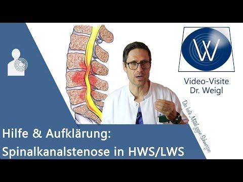 Spinalkanalstenose: Rückenschmerzen durch Spinalstenose in HWS/ LWS ⚡ Symptome, Gefahren & Therapie