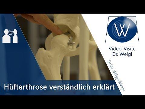 Hüftschmerzen ⚡ Was tun bei Hüftarthrose? Therapie & Übungen bei Coxarthrose ✔ Schmerz lösen #4