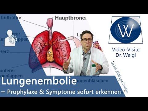 Lungenembolie ⚠ unbedingt vorbeugen & schnell erkennen - Symptome, Behandlung & Ursachen erklärt ✅