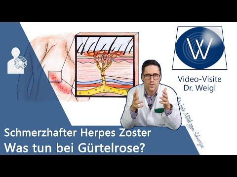 Herpes Zoster (Gürtelrose) durch Windpocken-Viren 😬 Schmerzen & Ausschlag - Entstehung & Therapie