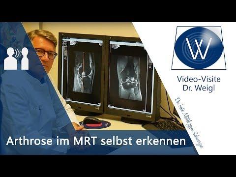 Knieschmerzen, Knieverletzung & Kniearthrose im MRT - Diagnose Arthrose, Kreuzbandriss, Meniskus
