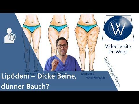 Lipödem - Warum habe ich dicke Beine & was kann ich dagegen tun? Ursachen, Symptome & Therapie