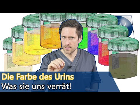 Urin: Hell, farbig oder dunkel! Auf diese Urinfarben sollten Sie achten wenn Sie pinkeln!