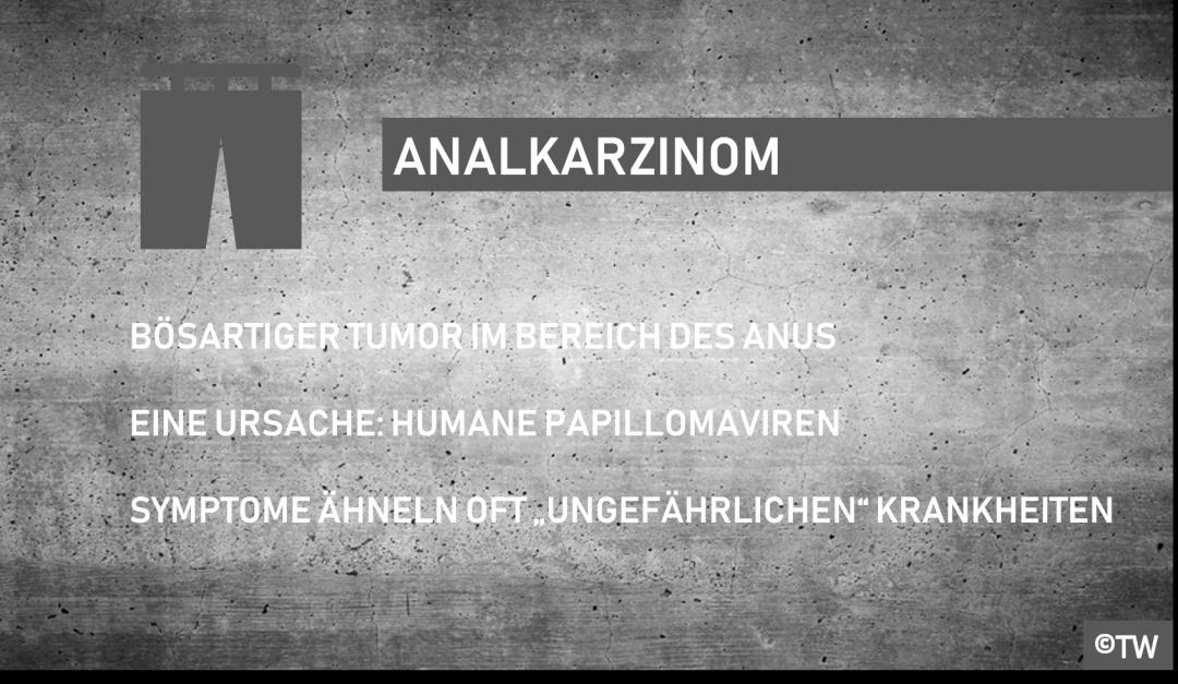 Doktorweiglde Erklärt Analkarzinom Symptome Behandlung