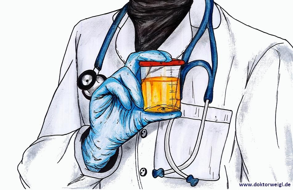 Eine Urinprobe ist bei manchen Untersuchungen unabdinglich