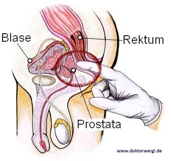 prostata zonen